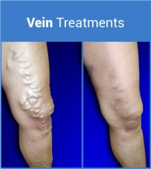 treatment-vein